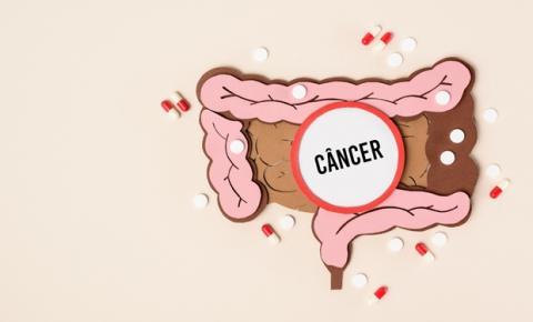 Câncer de intestino: sinais e sintomas que podem sugerir a doença