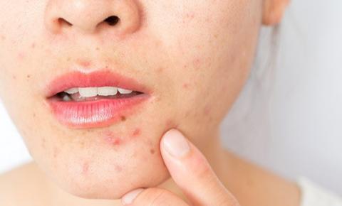 Alimentos que ajudam a eliminar a acne